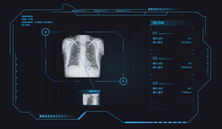 匯醫慧影郭娜:AI醫療助力全球抗疫,凸顯技術紅利和社會價值
